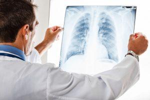 cancer bronhic