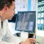 alzheimer algoritm simptome